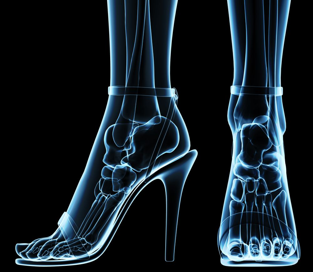 10. Using X-Rays to Determine Your Shoe Size is a Punishable Offense