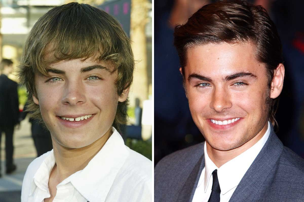 10 Celebrity Teeth Makeovers You Won't Believe