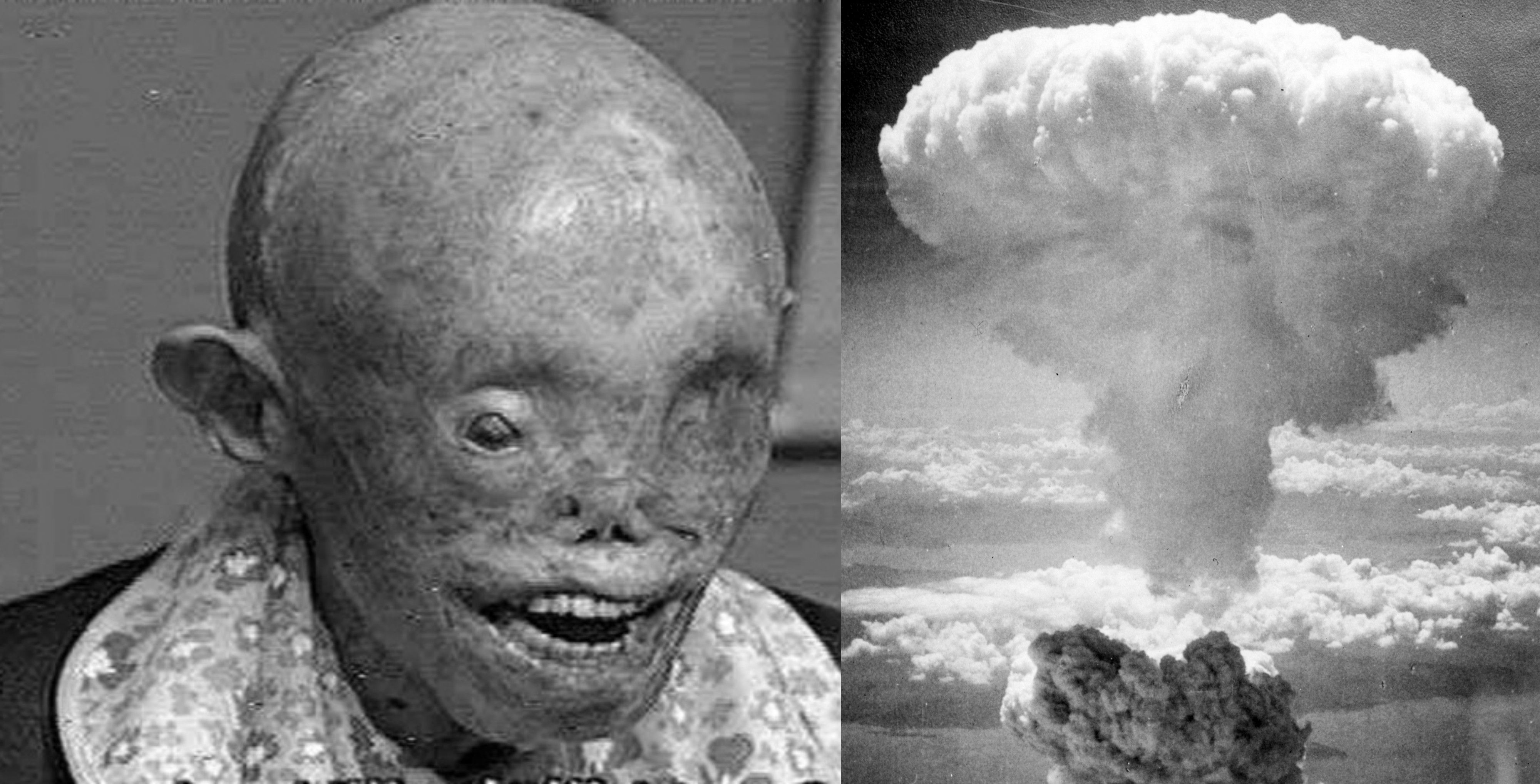 Hiroshima radiation birth defects