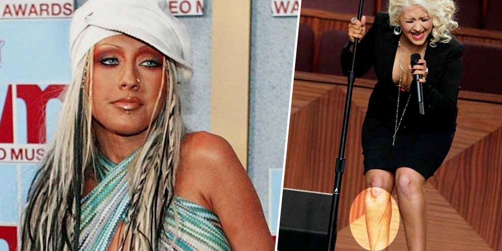 Photos Of Christina Aguilera's Worst Moments | TheRichest