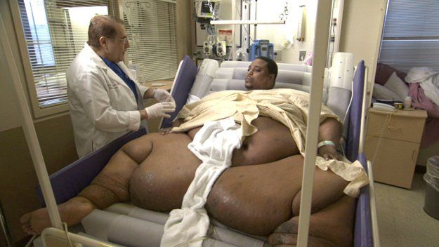 of the fattest people ever  10 Fattest People In The World