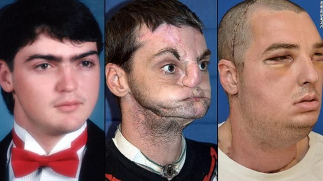 10 Most Shocking Transplants Ever Performed on People